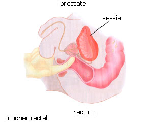 test de la prostate