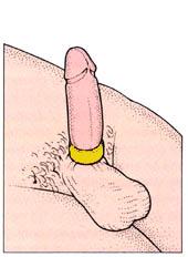 maintenir une erection